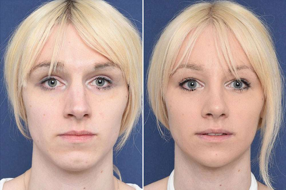 Freya voor en na Facial Feminization Surgery